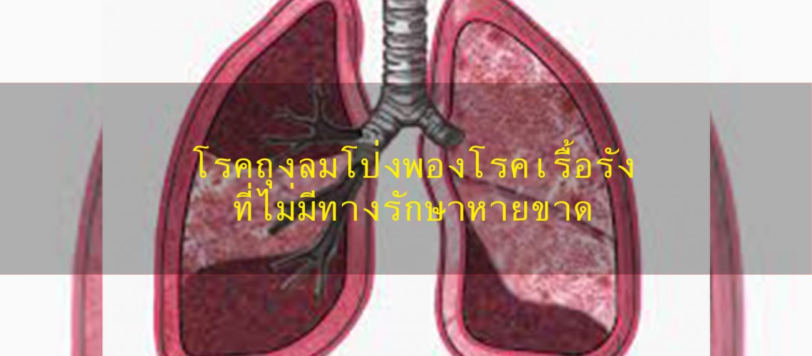 โรคถุงลมโป่งพองโรคเรื้อรังที่ไม่มีทางรักษาหายขาด การดูแลสุขภาพเบื้องต้น วิธีและเทคนิคการวิ่ง เสพติดการวิ่ง